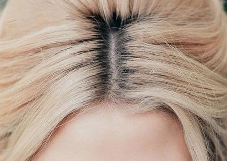 ریشه گیری مو